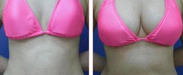 张女士自体脂肪隆胸前后效果