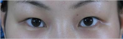 双眼皮+开眼角术前的我