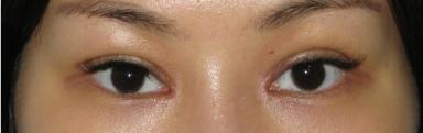 双眼皮+开眼角术后一周的我