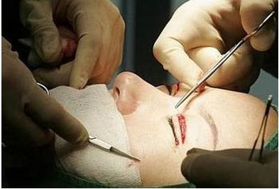 双眼皮+开眼角手术过程