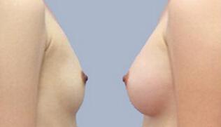 自体脂肪隆胸前后效果