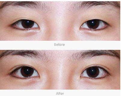6针美瞳微创双眼皮,术前、术后效果对比图!