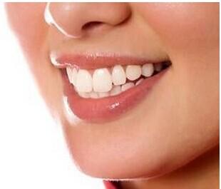 遗传性黄牙怎么办