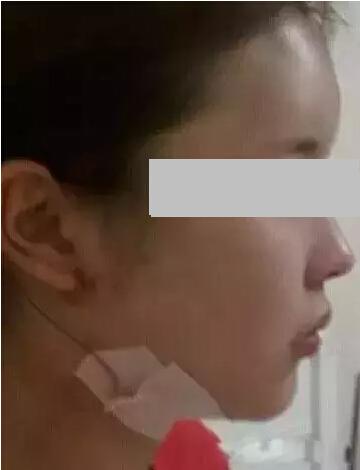 溶脂针+面部溶脂+玻尿酸填充额头_注射美容_案例展示