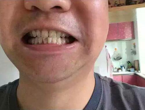 牙齿美白前效果图