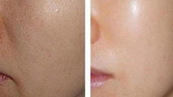 能迅速排出人体内的黑色素,改善暗黄干燥的肌肤,提亮肤色,使肌肤光感