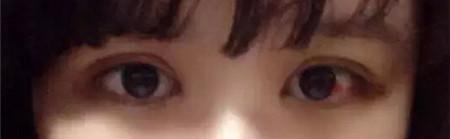 在南昌佳美做双眼皮+开眼角 我变身成萌妹子